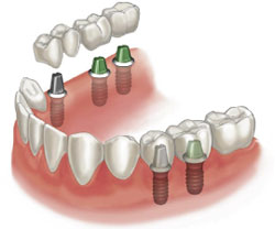 Tooth implants -